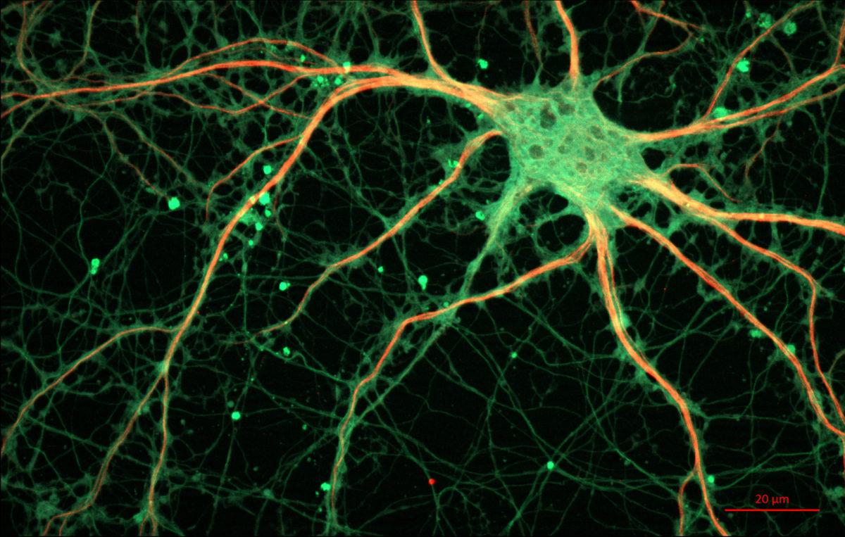 neurony-1200x763.jpg